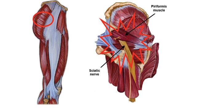 Piriformis syndrome illustration